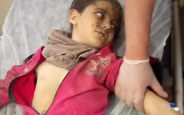 إصابة خمسة أطفال في انفجار بعفرين