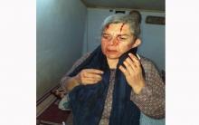 Çekdarên PYD êrîşî gundekî kirin û serê jineke kurd şikandin